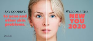 One woman showing two different kinds of faces, one is smooth and other one are with skin problems, promoting skincare remedy on a website banner